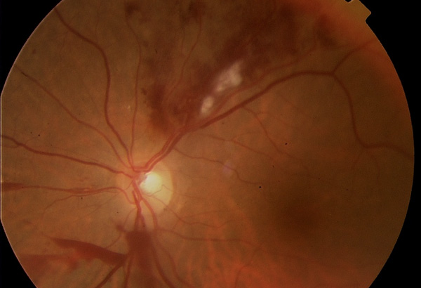 Branch Retinal Vein Occlusion Treatment Studies