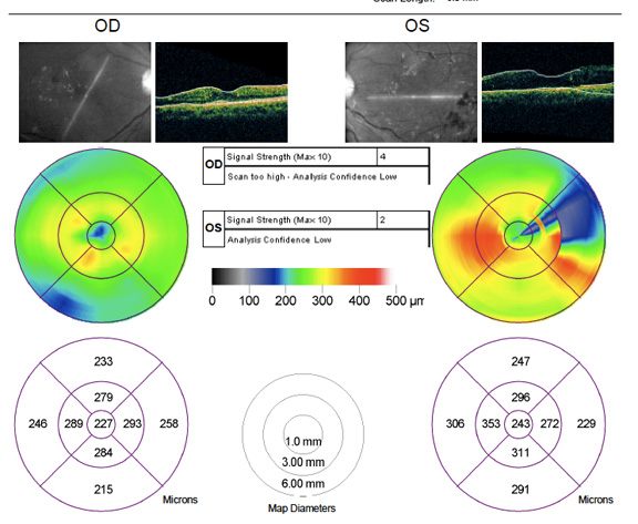 OCT-showing-resolution-of-macular-oedema-one-year-after-presentation