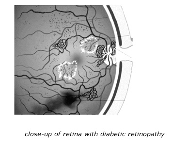 close_up_of_retina_with_diabetic_retinopathy