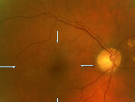 epiretinal-membrane-right-eye
