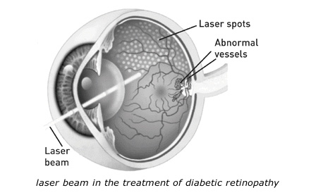 laser_beam_in_the_treatment_of_diabetic_retinopathy
