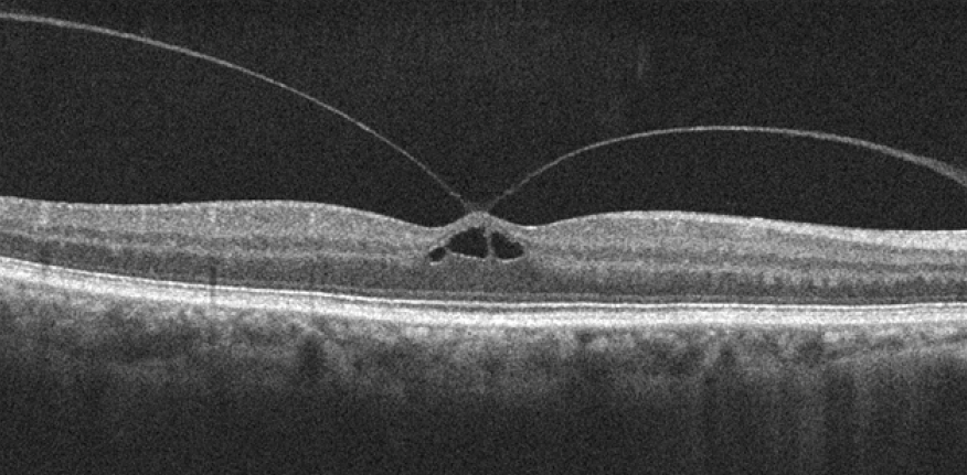 Optical Coherence Tomography of Vitreomacular traction